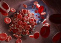 What is a Blood Clot – Causes, Symptoms, D-dimer Levels and Treatment