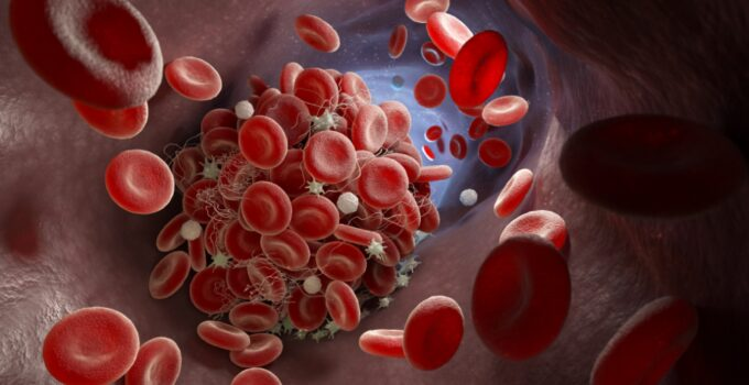 What is a Blood Clot?; Causes, Symptoms, D-dimer Levels and Treatment