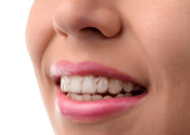 Why You Should Choose a Clear Braces Teeth Straightening